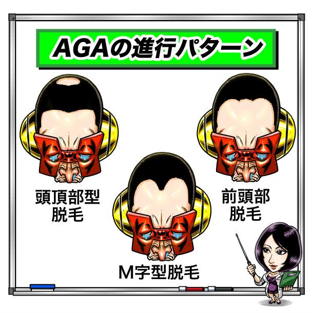 AGAの3つのタイプ