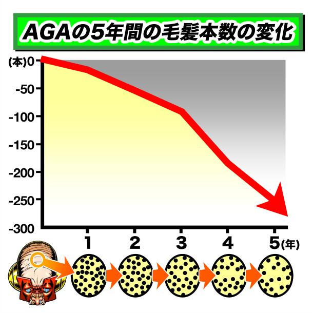 AGAの5年間の毛髪本数の変化