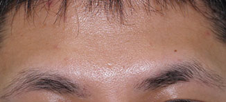 眉毛植毛の施術前(正面)~男性~
