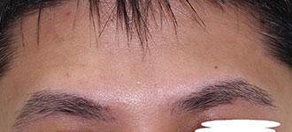 眉毛植毛の施術後(正面)~男性~