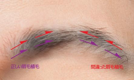 眉毛植毛の失敗例