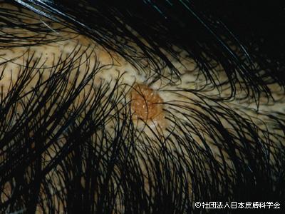 皮にできた老人性疣贅の画像