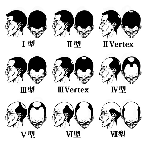 薄毛のパターン別