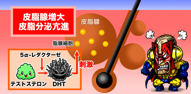 ジヒドロテストステロンと薄毛の関係