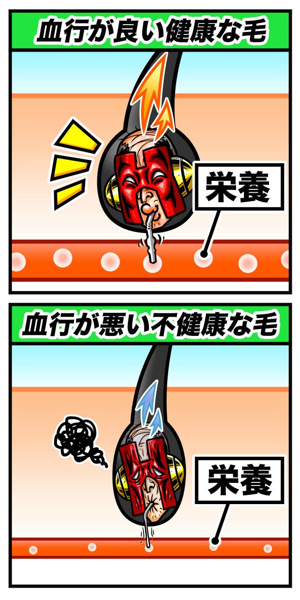 頭皮が血行不良の解説イラスト