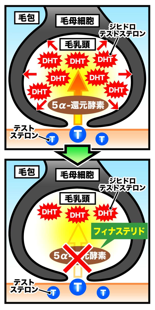 フィナステリドの働きを示す図