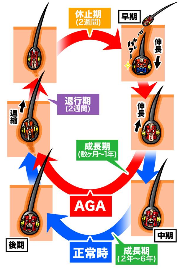 AGAの毛周期解説イラスト