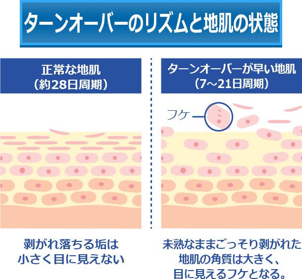 ターンオーバーのリズムと地肌の状態