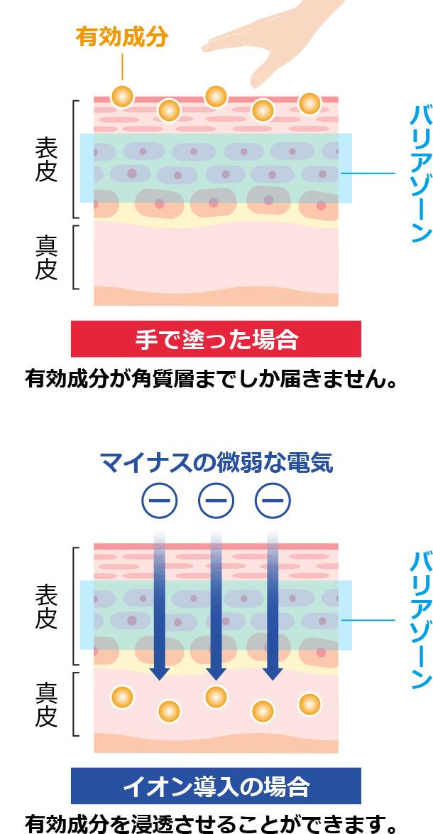 ニキビ治療イオン導入の解説イラスト