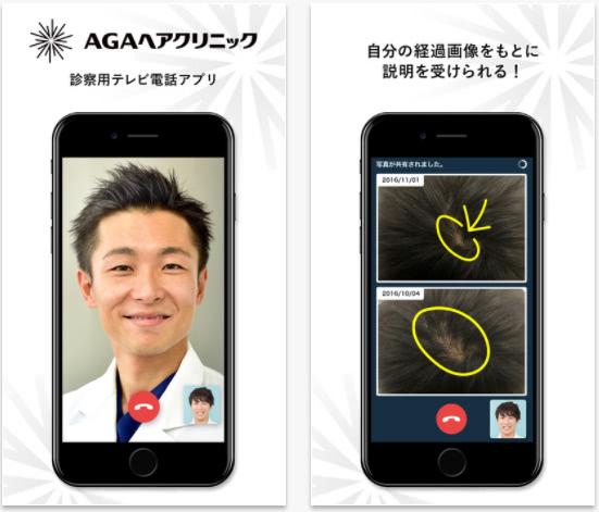 AGAヘアクリニックのテレビ電話アプリ