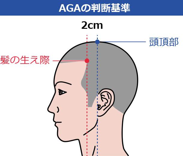 M字ハゲと脱毛症の違いを判断